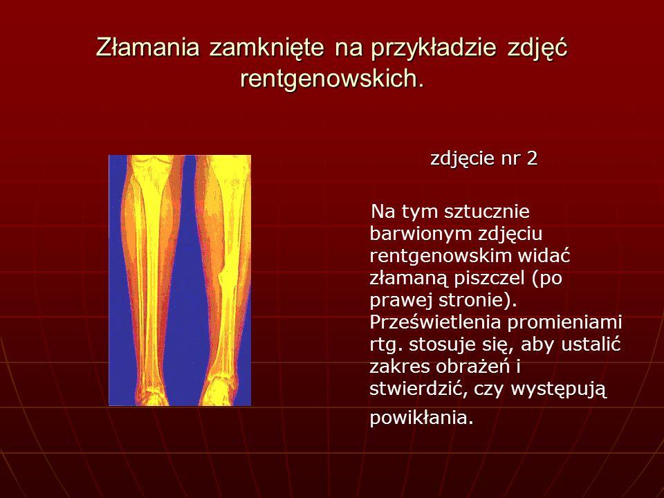 Złamania zamknięte na przykładzie zdjęć rentgenowskich. zdjęcie nr 2 Na tym sztucznie barwionym zdjęciu rentgenowskim widać złamaną piszczel (po prawe