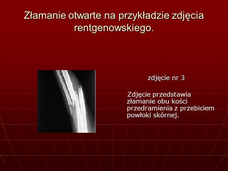 Złamanie otwarte na przykładzie zdjęcia rentgenowskiego. zdjęcie nr 3 Zdjęcie przedstawia złamanie obu kości przedramienia z przebiciem powłoki skórne
