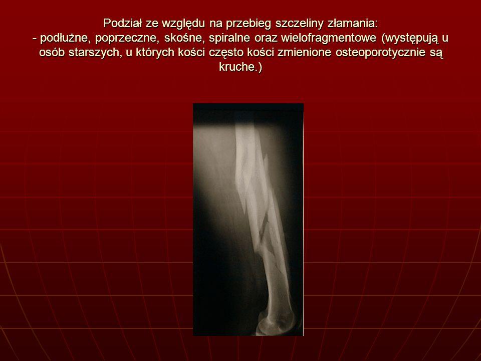 Podział ze względu na przebieg szczeliny złamania: - podłużne, poprzeczne, skośne, spiralne oraz wielofragmentowe (występują u osób starszych, u który