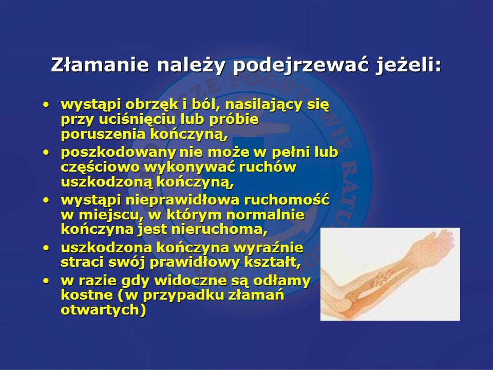 Złamanie należy podejrzewać jeżeli: wystąpi obrzęk i ból, nasilający się przy uciśnięciu lub próbie poruszenia kończyną,wystąpi obrzęk i ból, nasilają