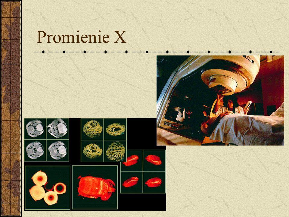 Promienie X