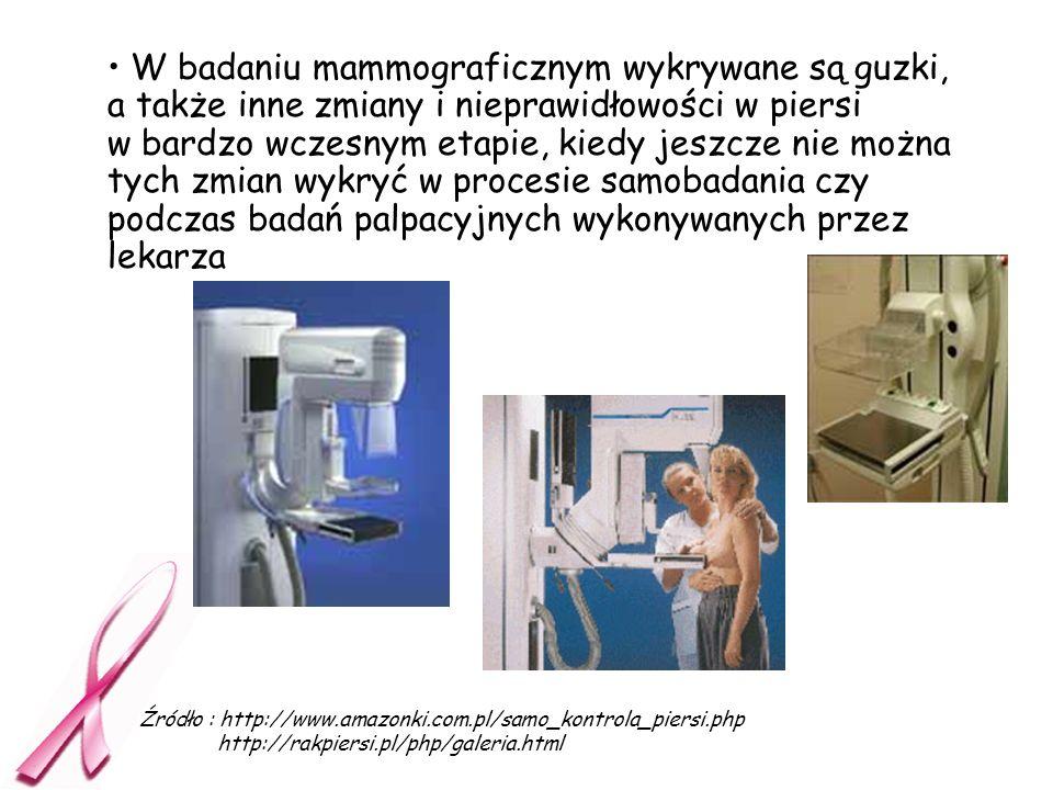 W badaniu mammograficznym wykrywane są guzki, a także inne zmiany i nieprawidłowości w piersi w bardzo wczesnym etapie, kiedy jeszcze nie można tych z