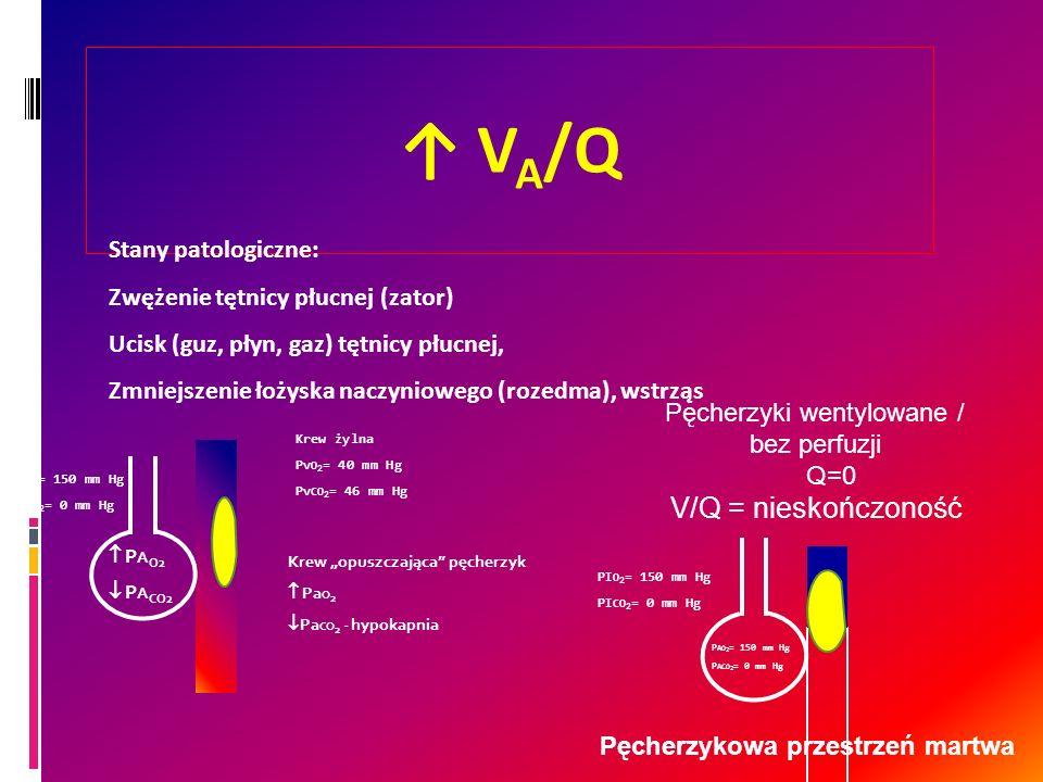 Pęcherzykowa przestrzeń martwa V A /Q P A O2 P A CO2 Krew żylna Pv O 2 = 40 mm Hg Pv CO 2 = 46 mm Hg Krew opuszczająca pęcherzyk Pa O 2 Pa CO 2 - hypo