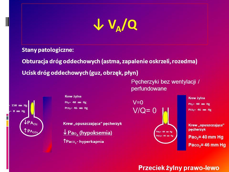 V A /Q P A O2 P A CO2 Krew żylna P O 2 = 40 mm Hg P CO 2 = 46 mm Hg Krew opuszczająca pęcherzyk Pa O 2 (hypoksemia) Pa CO 2 - hyperkapnia Stany patolo
