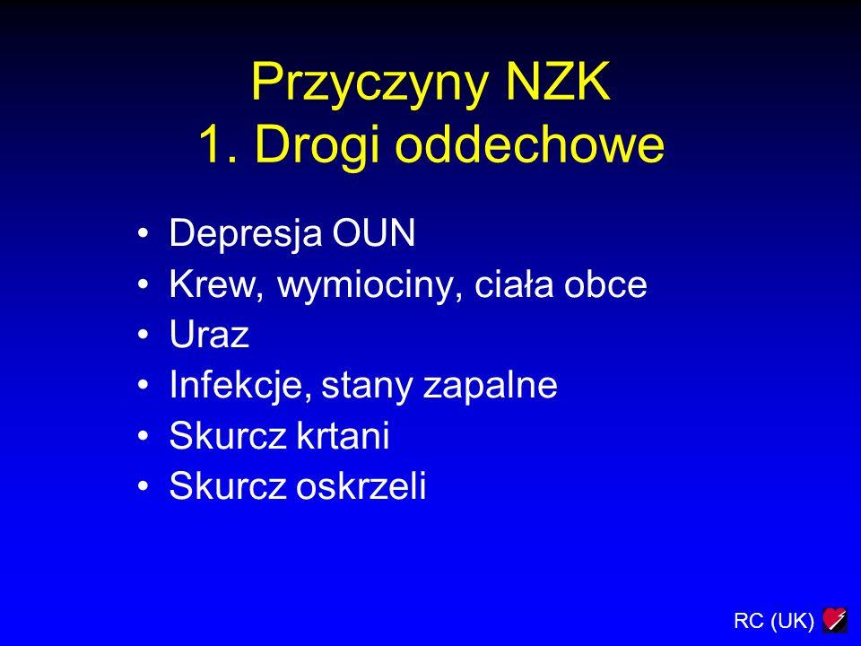 RC (UK) Przyczyny NZK 2.