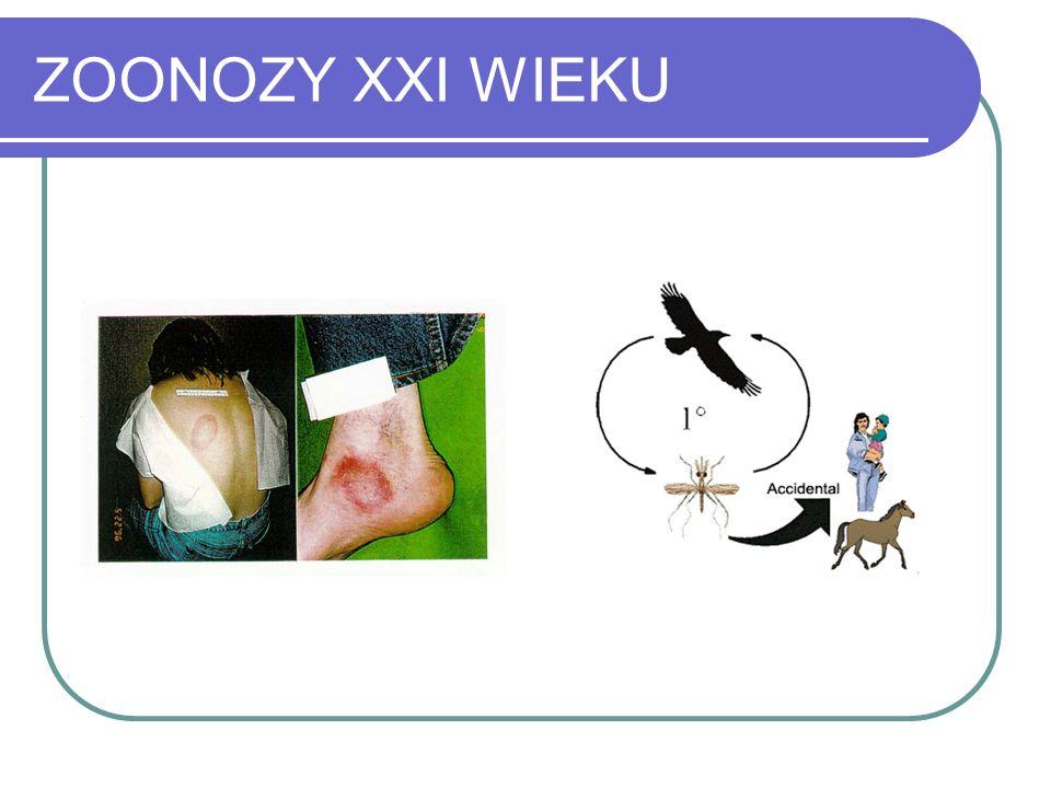 ZOONOZY XXI WIEKU I CHOROBAODKRYCIEETIOLOGIAOBJAWY Ch.