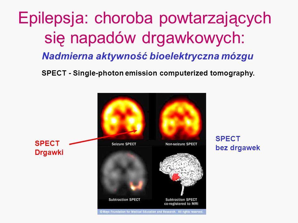 Epilepsja: choroba powtarzających się napadów drgawkowych: Nadmierna aktywność bioelektryczna mózgu SPECT bez drgawek SPECT Drgawki SPECT - Single-pho