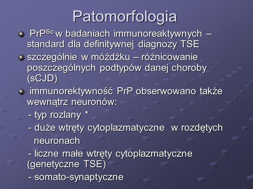 Patomorfologia PrP Sc w badaniach immunoreaktywnych – standard dla definitywnej diagnozy TSE PrP Sc w badaniach immunoreaktywnych – standard dla defin