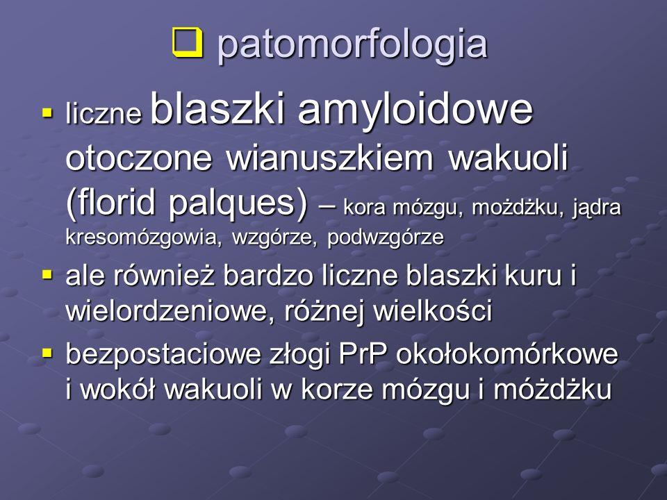 patomorfologia patomorfologia liczne blaszki amyloidowe otoczone wianuszkiem wakuoli (florid palques) – kora mózgu, możdżku, jądra kresomózgowia, wzgó
