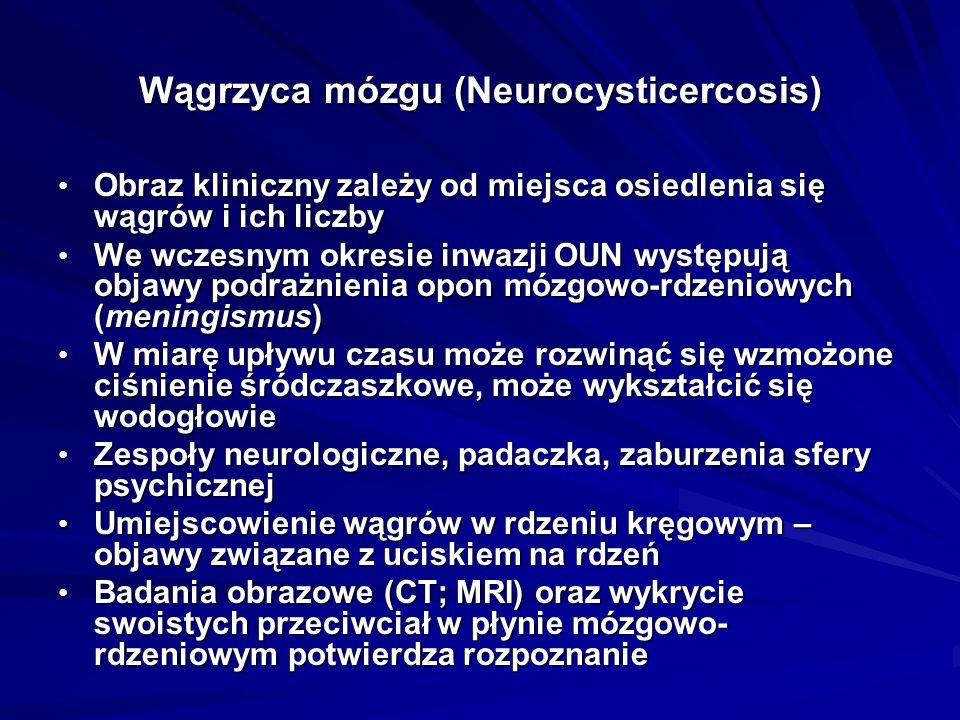 Wągrzyca mózgu (Neurocysticercosis) Obraz kliniczny zależy od miejsca osiedlenia się wągrów i ich liczby Obraz kliniczny zależy od miejsca osiedlenia