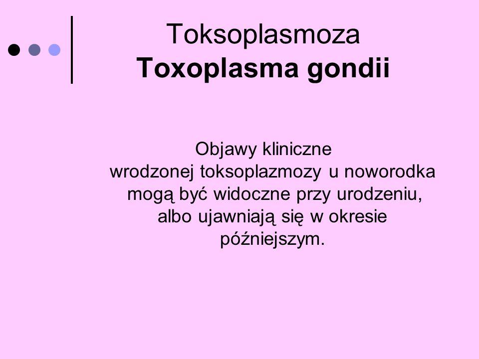 Toksoplasmoza Toxoplasma gondii Objawy kliniczne wrodzonej toksoplazmozy u noworodka mogą być widoczne przy urodzeniu, albo ujawniają się w okresie pó