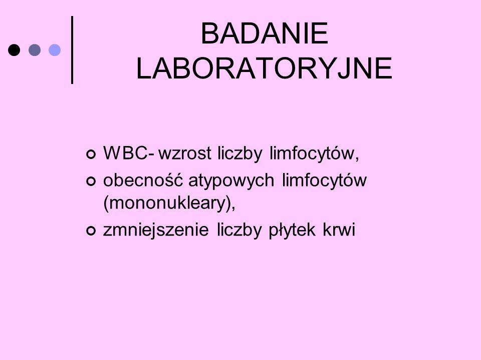 BADANIE LABORATORYJNE WBC- wzrost liczby limfocytów, obecność atypowych limfocytów (mononukleary), zmniejszenie liczby płytek krwi