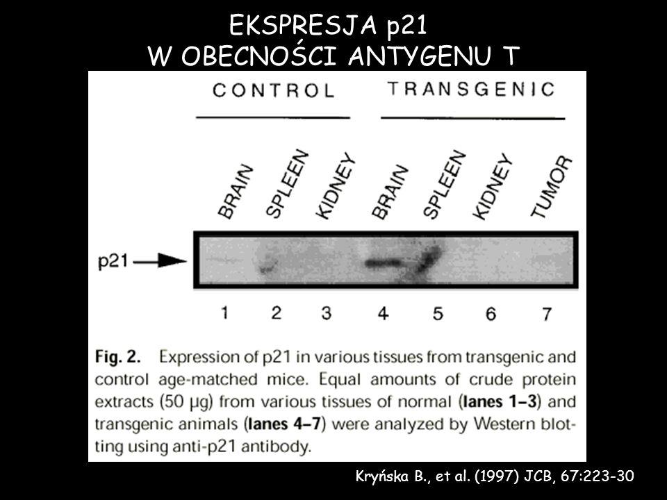 Kryńska B., et al. (1997) JCB, 67:223-30 EKSPRESJA p21 W OBECNOŚCI ANTYGENU T