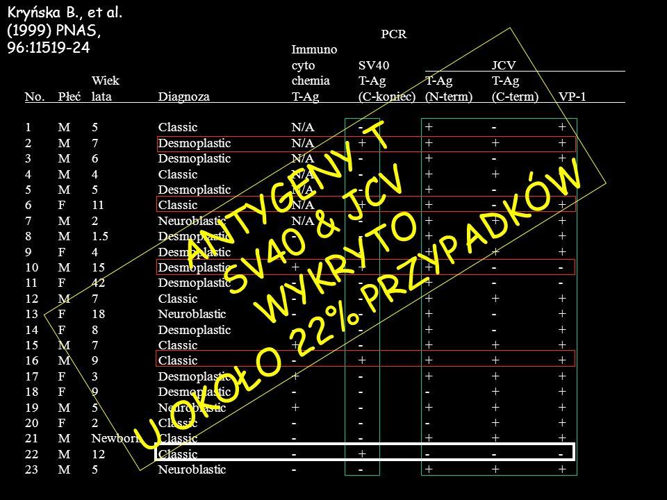 PCR Immuno cytoSV40JCV WiekchemiaT-AgT-AgT-Ag No.PłećlataDiagnozaT-Ag(C-koniec)(N-term)(C-term)VP-1 1M5ClassicN/A-+-+ 2M7DesmoplasticN/A++++ 3M6Desmop