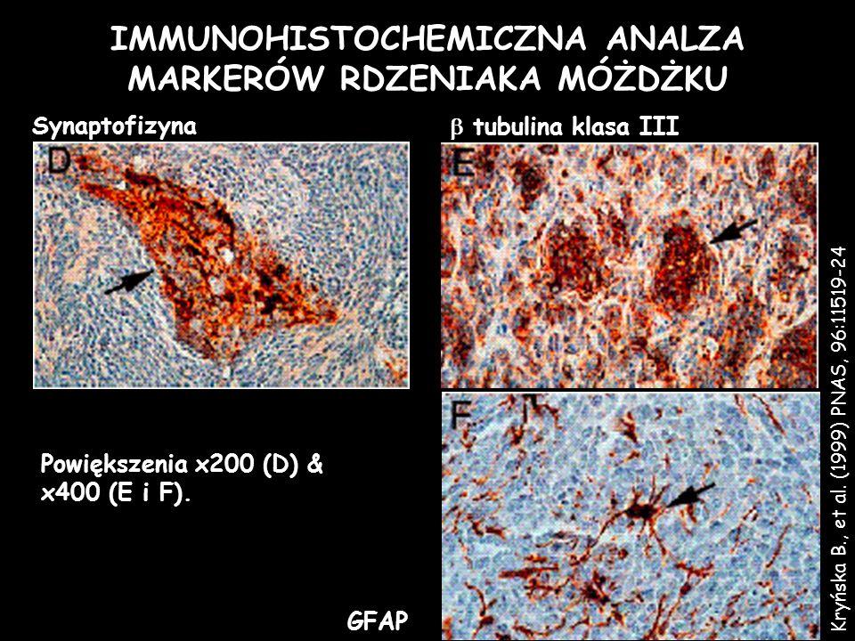IMMUNOHISTOCHEMICZNA ANALZA MARKERÓW RDZENIAKA MÓŻDŻKU GFAP Powiększenia x200 (D) & x400 (E i F). Synaptofizyna tubulina klasa III Kryńska B., et al.