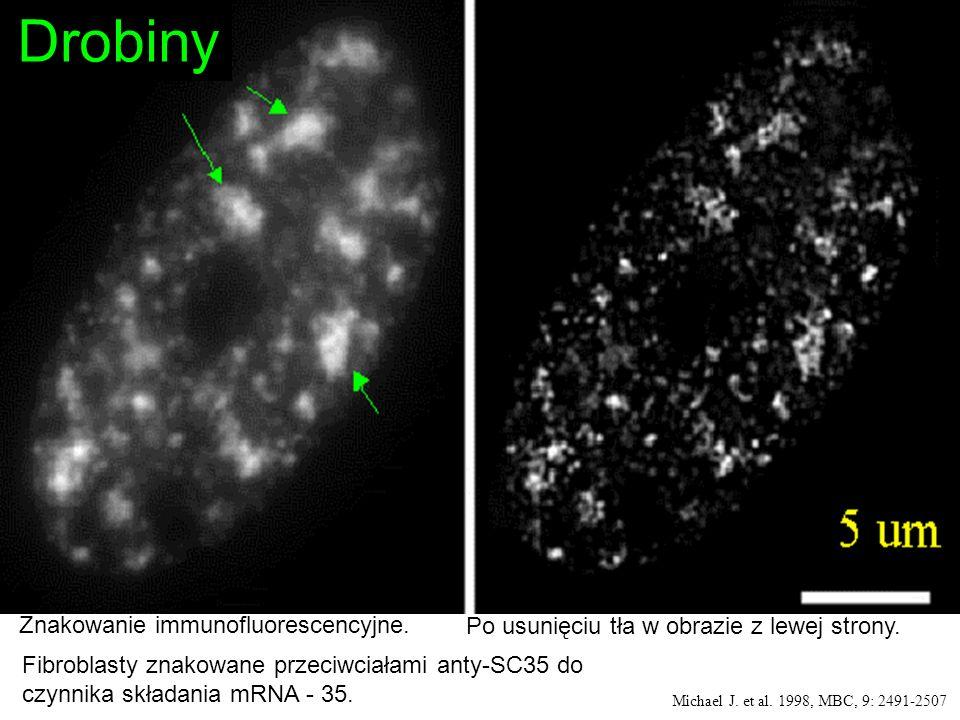 Fibroblasty znakowane przeciwciałami anty-SC35 do czynnika składania mRNA - 35. Michael J. et al. 1998, MBC, 9: 2491-2507 Znakowanie immunofluorescenc