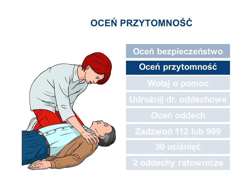 OCEŃ PRZYTOMNOŚĆ Oceń bezpieczeństwo Oceń przytomność Wołaj o pomoc Udrożnij dr. oddechowe Oceń oddech Zadzwoń 112 lub 999 30 uciśnięć 2 oddechy ratow