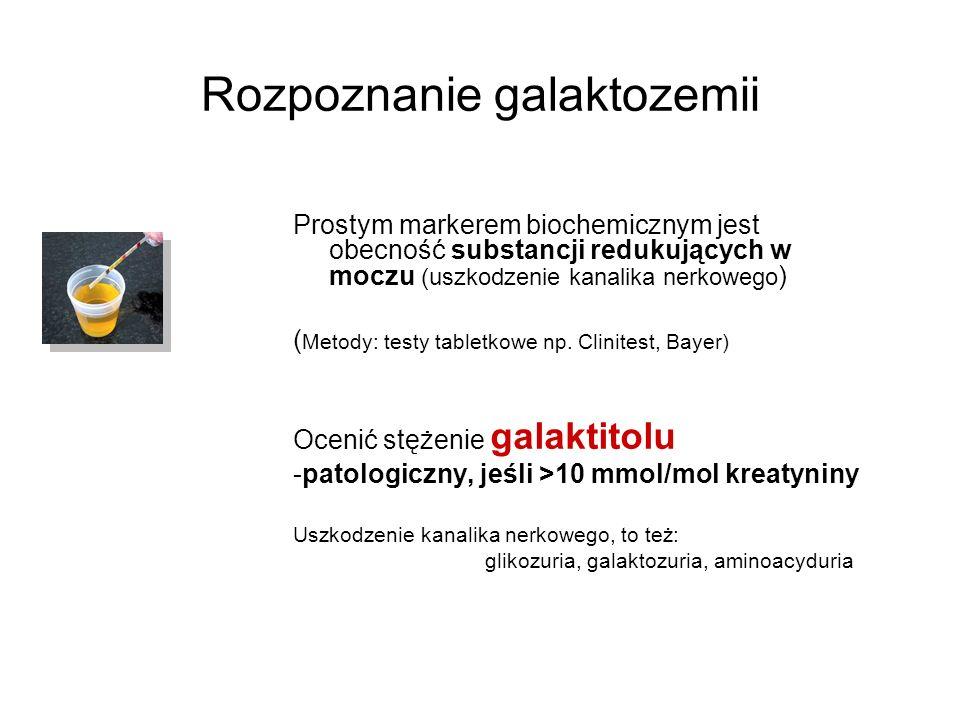 Rozpoznanie galaktozemii Prostym markerem biochemicznym jest obecność substancji redukujących w moczu (uszkodzenie kanalika nerkowego ) ( Metody: test