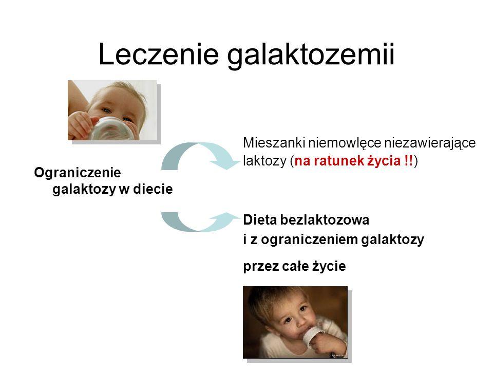 Leczenie galaktozemii Ograniczenie galaktozy w diecie Mieszanki niemowlęce niezawierające laktozy (na ratunek życia !!) Dieta bezlaktozowa i z ogranic