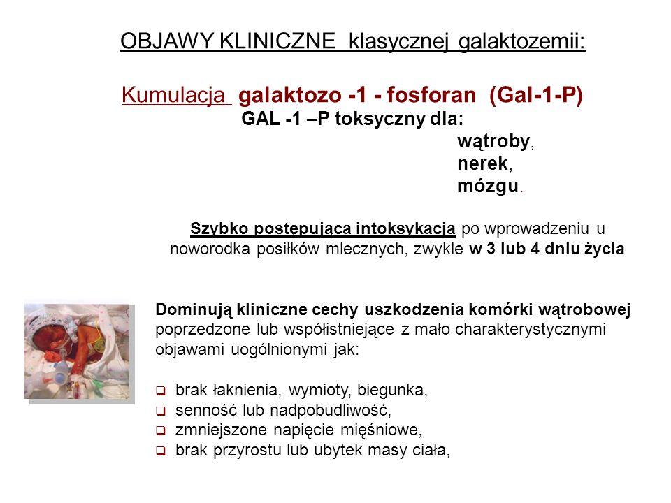 Objawy klasycznej galaktozemii Zaburzenia czynności wątroby w galaktozemii patologiczna żółtaczka pojawia się wcześniej niż fizjologiczna, charakteryzuje się szybkim narastaniem stężenia bilirubiny (często wymagającym wykonania przetaczania wymiennego krwi) zwykle z hepatomegalią i zwiększeniem aktywności aminotransaminaz utrzymuje się do 2 – 3 mies.ż.