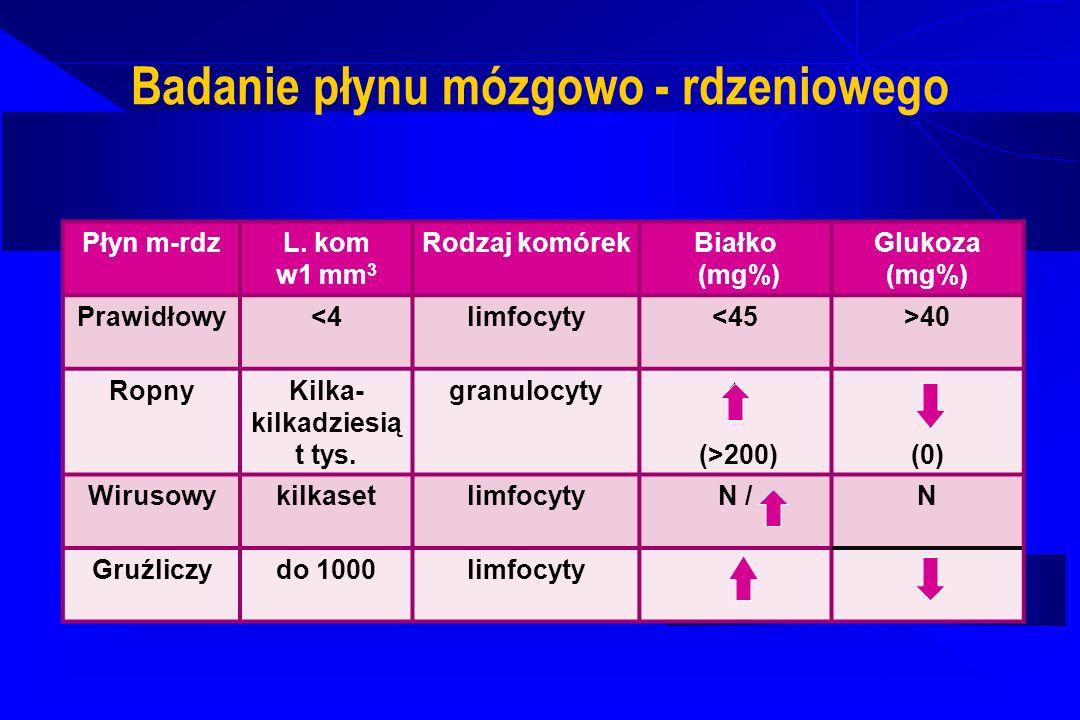 Badanie płynu mózgowo - rdzeniowego Płyn m-rdz L. kom w1 mm 3 Rodzaj komórekBiałko (mg%) Glukoza (mg%) Prawidłowy<4limfocyty<45>40 RopnyKilka- kilkadz