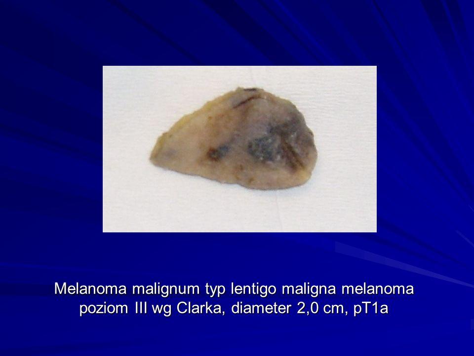 Melanoma malignum typ lentigo maligna melanoma poziom III wg Clarka, diameter 2,0 cm, pT1a