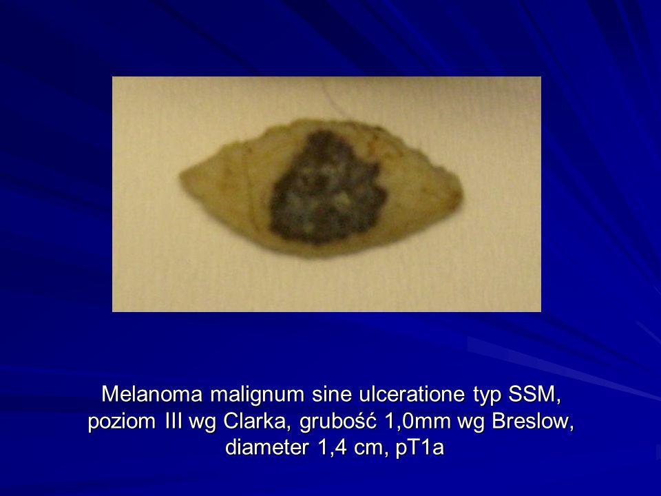 Melanoma malignum sine ulceratione typ SSM, poziom III wg Clarka, grubość 1,0mm wg Breslow, diameter 1,4 cm, pT1a