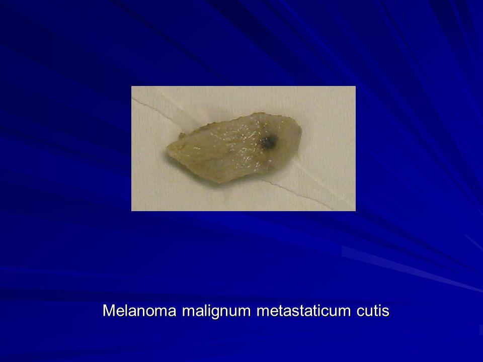 Melanoma malignum metastaticum cutis