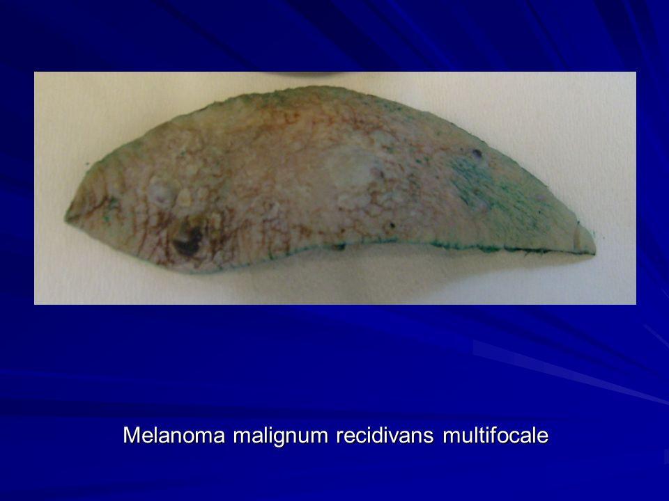 Melanoma malignum recidivans multifocale