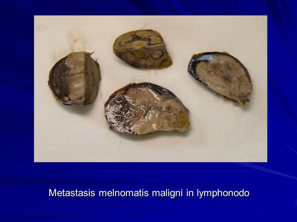 Metastasis melnomatis maligni in lymphonodo