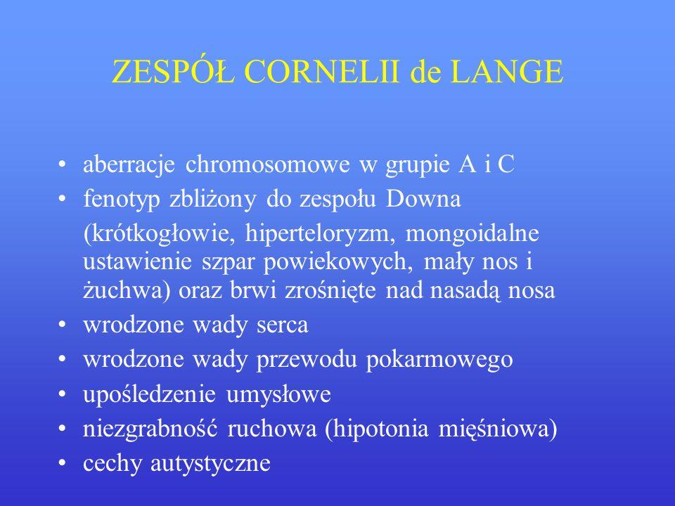 ZESPÓŁ CORNELII de LANGE aberracje chromosomowe w grupie A i C fenotyp zbliżony do zespołu Downa (krótkogłowie, hiperteloryzm, mongoidalne ustawienie