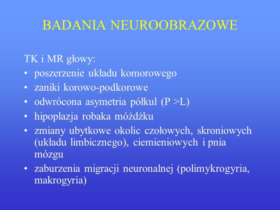 BADANIA NEUROOBRAZOWE TK i MR głowy: poszerzenie układu komorowego zaniki korowo-podkorowe odwrócona asymetria półkul (P >L) hipoplazja robaka móżdżku