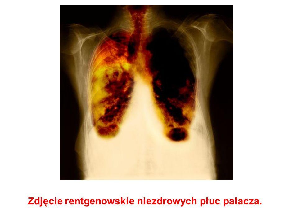 Zdjęcie rentgenowskie niezdrowych płuc palacza.