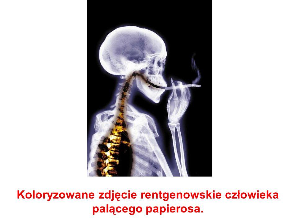 Koloryzowane zdjęcie rentgenowskie człowieka palącego papierosa.