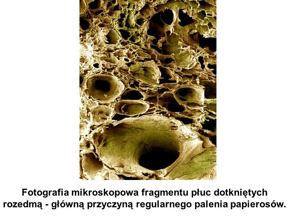 Fotografia mikroskopowa fragmentu płuc dotkniętych rozedmą - główną przyczyną regularnego palenia papierosów.