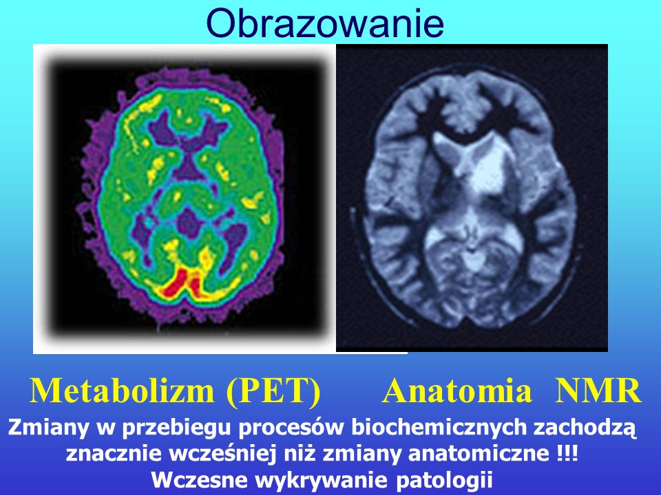 Tradycyjne metody diagnostyczne (radiologia, tomografia komputerowa, NMR, ultrasonografia) pozwalają na uzyskanie obrazów anatomii i struktury poszcze