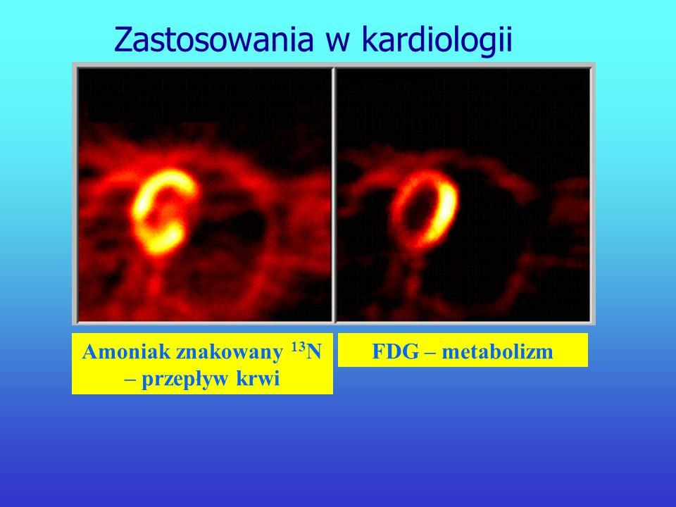 Tomografia pozytonowa służy do badań patologicznych w: neurologii i neurochirurgii psychiatrii kardiologii onkologii