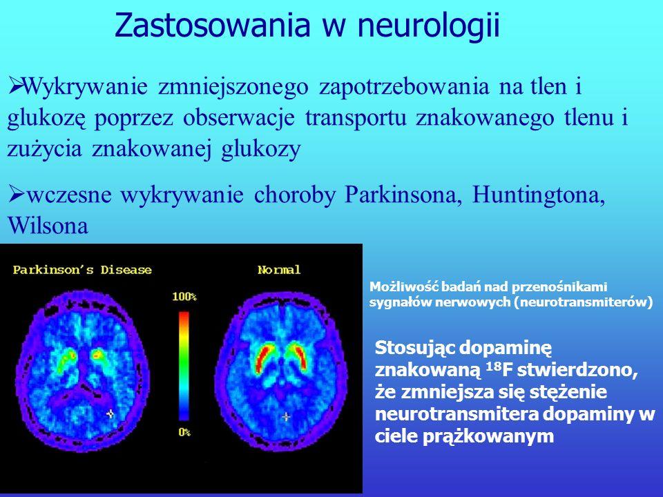 Amoniak znakowany 13 N – przepływ krwi FDG – metabolizm Zastosowania w kardiologii