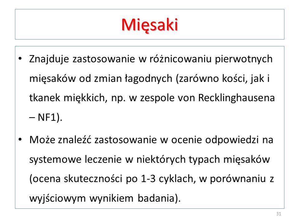 Mięsaki Znajduje zastosowanie w różnicowaniu pierwotnych mięsaków od zmian łagodnych (zarówno kości, jak i tkanek miękkich, np. w zespole von Reckling