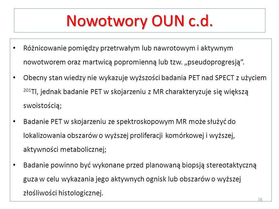 Nowotwory OUN c.d. Różnicowanie pomiędzy przetrwałym lub nawrotowym i aktywnym nowotworem oraz martwicą popromienną lub tzw. pseudoprogresją. Obecny s