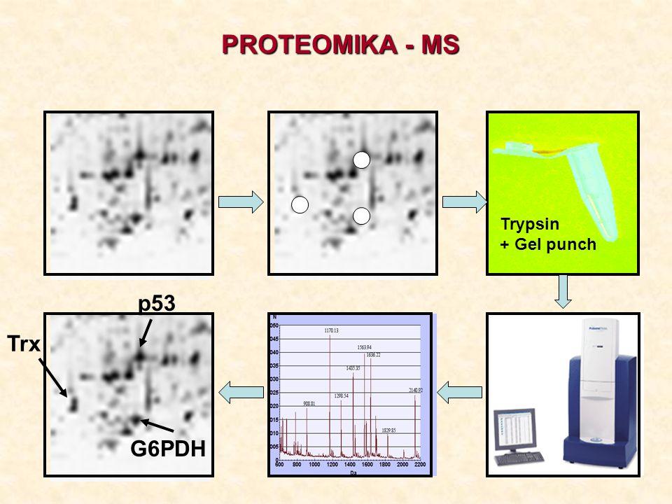 p53 G6PDH Trypsin + Gel punch PROTEOMIKA - MS Trx
