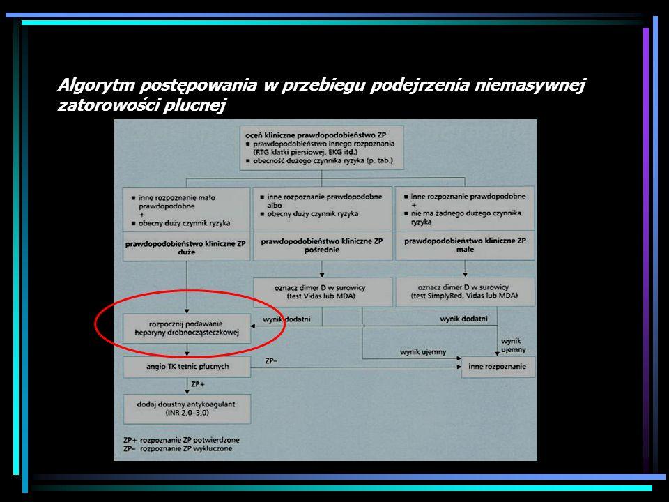 8.Leczenie Trombarterektomia Wszczep filtra do VCI Profilaktyka, profilaktyka, profilaktyka !!!