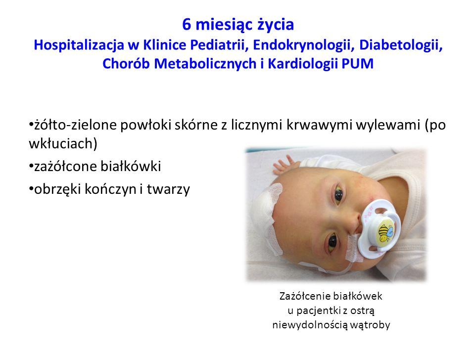6 miesiąc życia Hospitalizacja w Klinice Pediatrii, Endokrynologii, Diabetologii, Chorób Metabolicznych i Kardiologii PUM żółto-zielone powłoki skórne