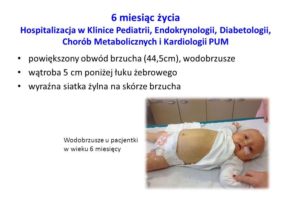 6 miesiąc życia Hospitalizacja w Klinice Pediatrii, Endokrynologii, Diabetologii, Chorób Metabolicznych i Kardiologii PUM powiększony obwód brzucha (4