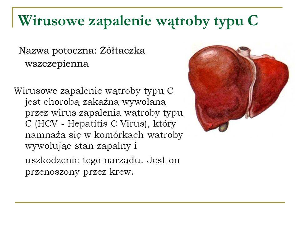Wirusowe zapalenie wątroby typu C Nazwa potoczna: Żółtaczka wszczepienna Wirusowe zapalenie wątroby typu C jest chorobą zakaźną wywołaną przez wirus z