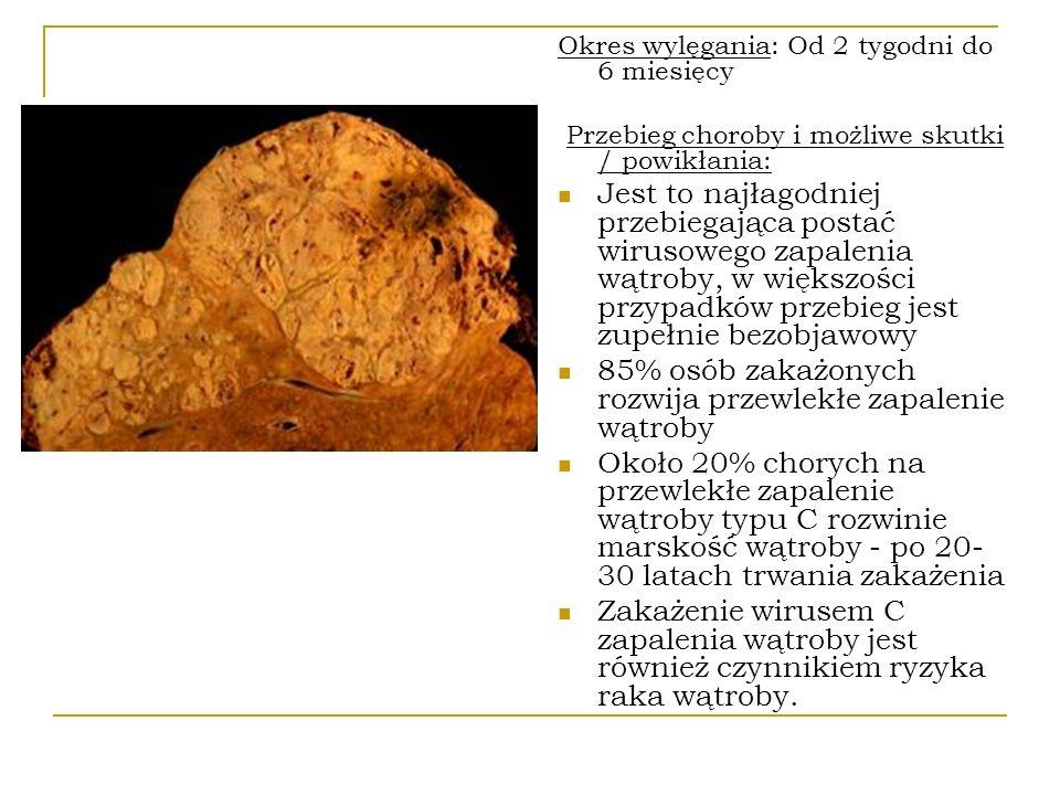 Okres wylęgania: Od 2 tygodni do 6 miesięcy Przebieg choroby i możliwe skutki / powikłania: Jest to najłagodniej przebiegająca postać wirusowego zapal