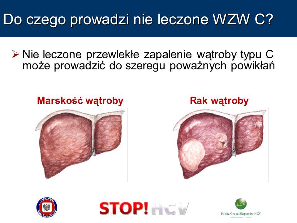 Do czego prowadzi nie leczone WZW C? Nie leczone przewlekłe zapalenie wątroby typu C może prowadzić do szeregu poważnych powikłań Marskość wątrobyRak