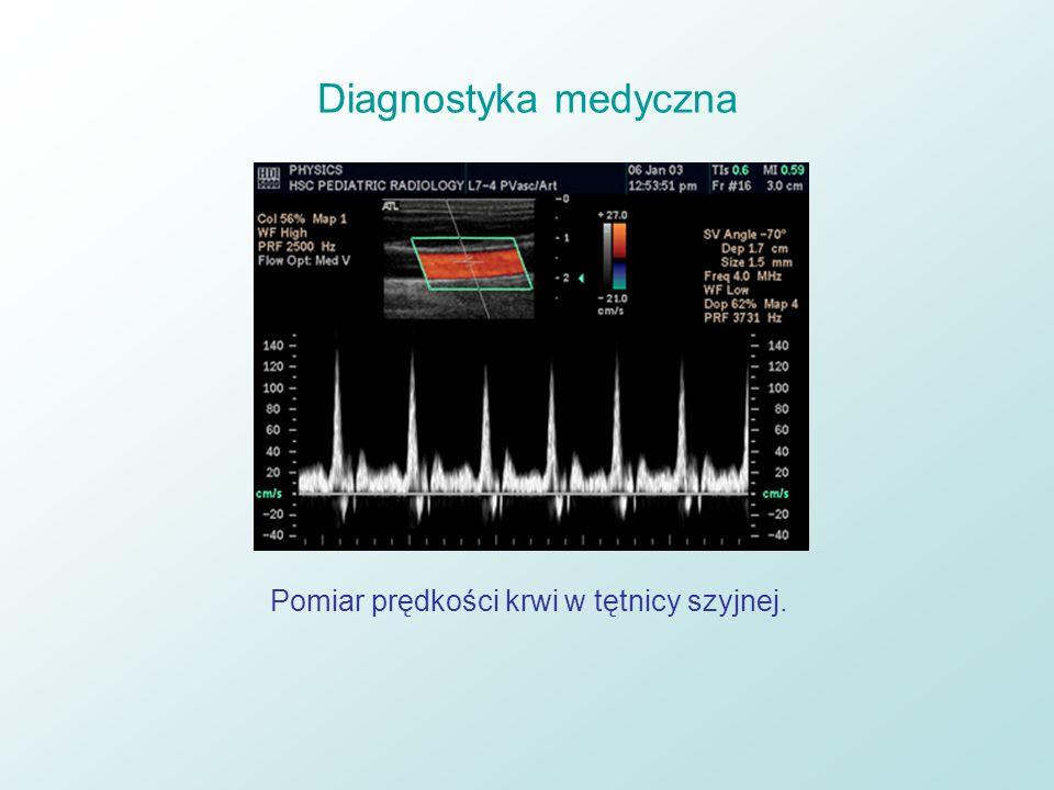 Diagnostyka medyczna Pomiar prędkości krwi w tętnicy szyjnej.