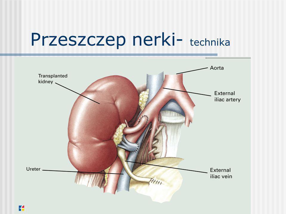 Przeszczep nerki- powikłania Chirurgiczne: -krwawienia -ucisk moczowodu przeszczepionego -limfocele -przeciek moczu -zakrzep tętnicy/żyły graftu