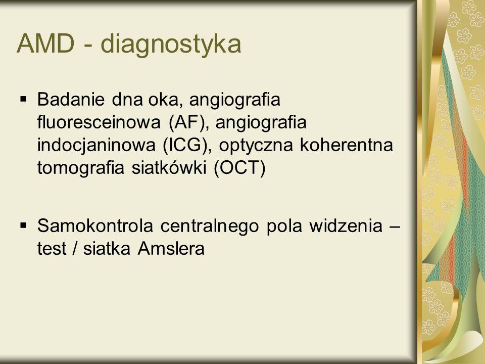 AMD - diagnostyka Badanie dna oka, angiografia fluoresceinowa (AF), angiografia indocjaninowa (ICG), optyczna koherentna tomografia siatkówki (OCT) Sa